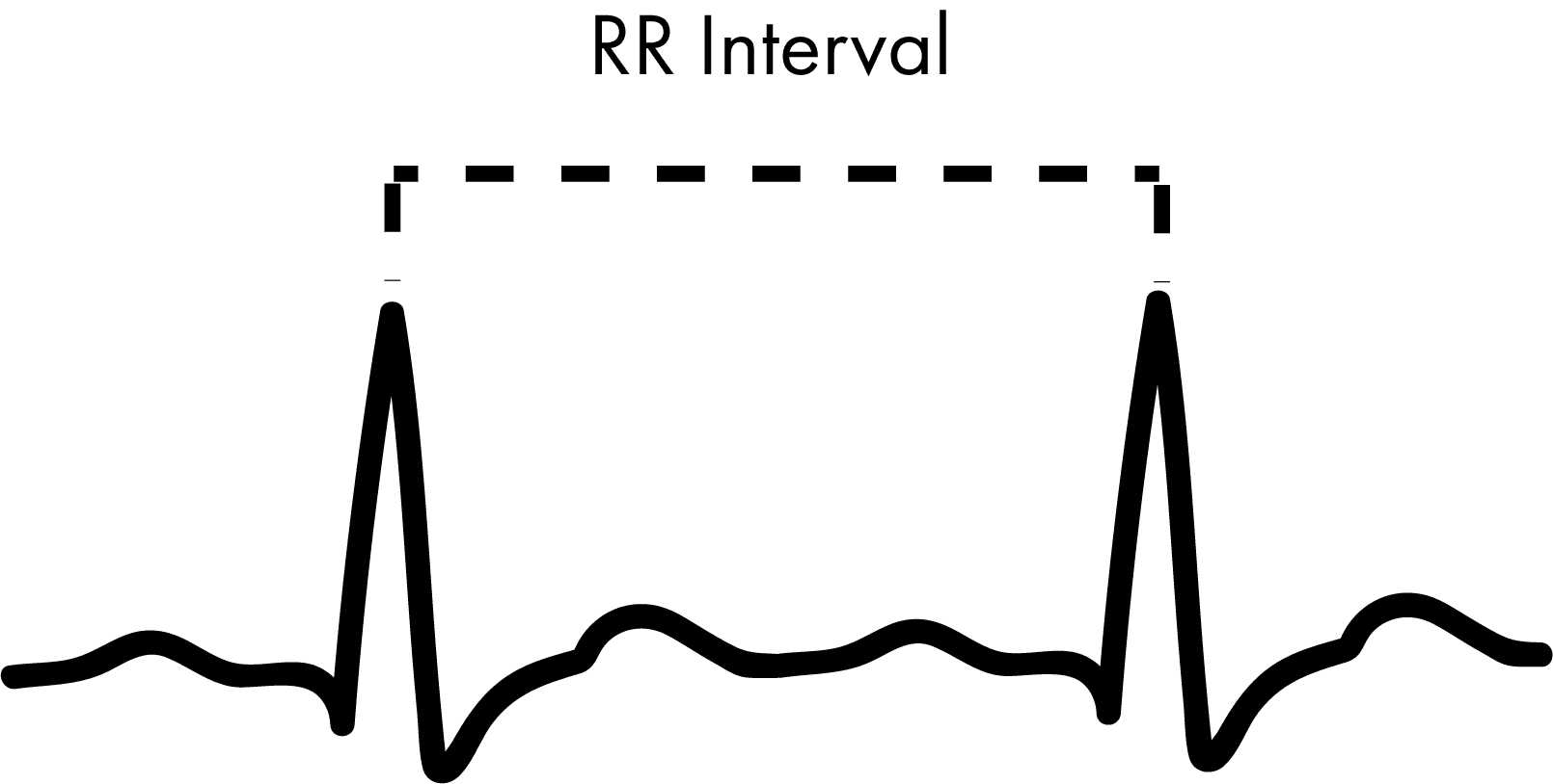Heart Rate Variability - How to Analyze ECG Data - iMotions