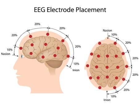 eeg-electrode-placement