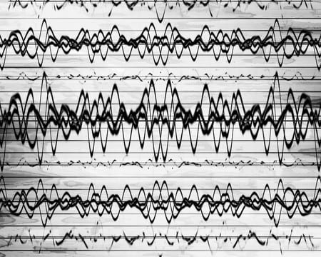 eeg-brain-waves