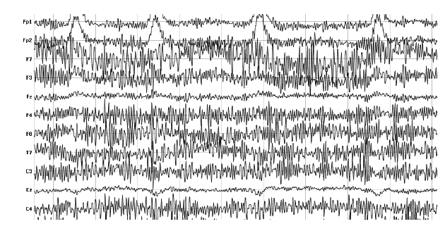 muscle movement eeg