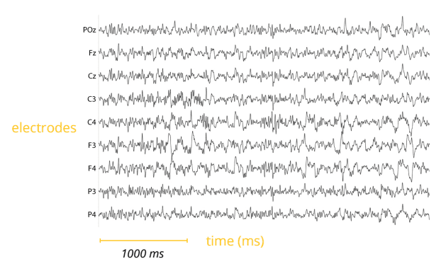eeg electrodes and time chart