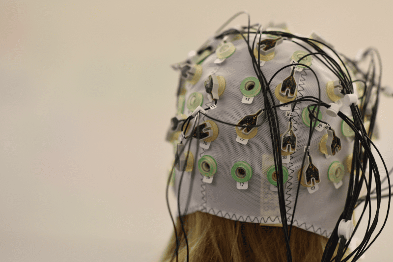 MRI fMRI EEG compared