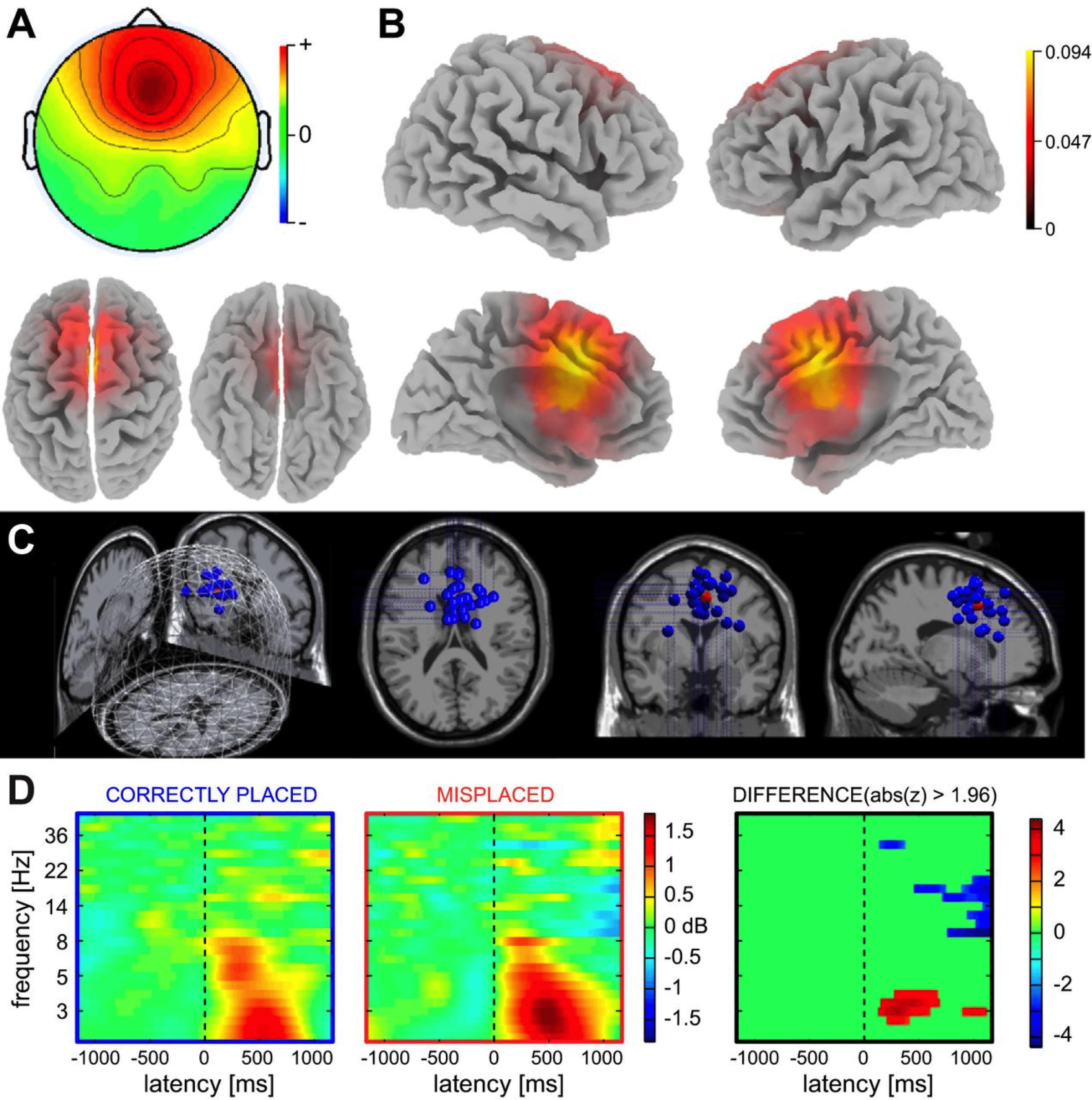 EEG visuals