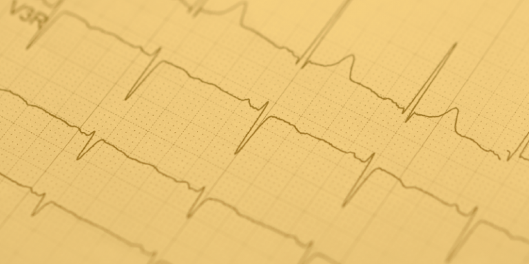 Heart Rate Variability - What This Measure Means for Emotions