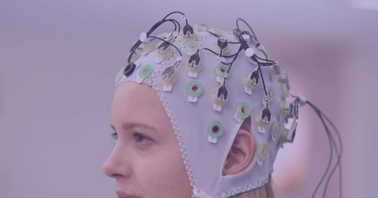 The Anatomy of an EEG Cap