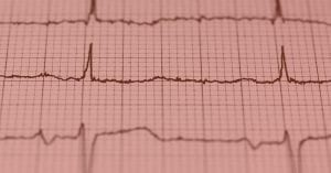 Heart Rate Variability – How to Analyze ECG Data