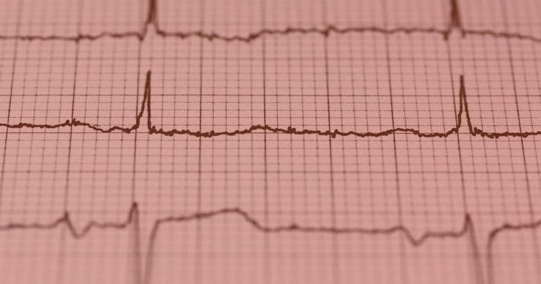 Heart Rate Variability - How to Analyze ECG Data
