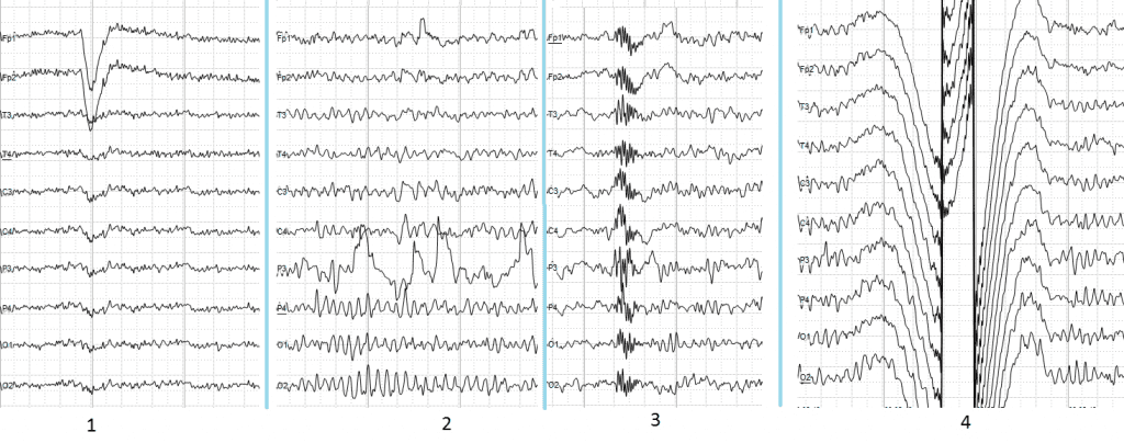 EEG (Electroencephalography): The Complete Pocket Guide